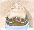 Brow Lift Surgery 2