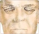 Eye Lift Surgery 2