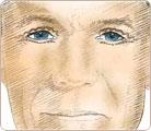 Eye Lift Surgery 3