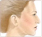 Rhinoplasty Surgery 1