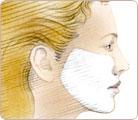 Skin Resurfacing 1