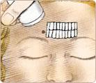 Skin Resurfacing 3
