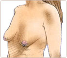 Breast Lift Surgery 1