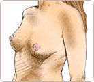 Breast Lift Surgery 4