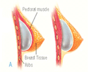 Breast Augmentation Operation 1