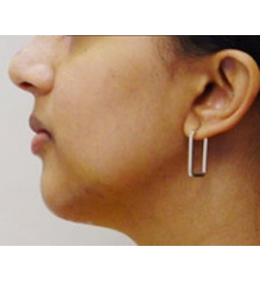 Chin Implant & Rhinoplasty After