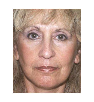 After Facial Rejuvenation Surgery