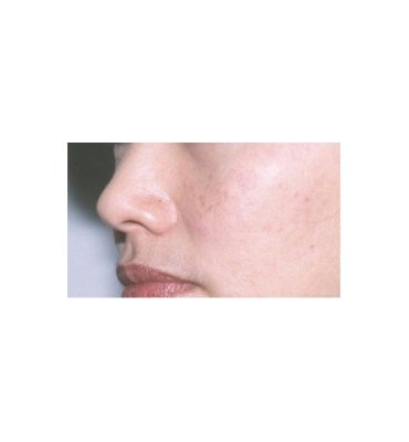 Shave Excision For Hyperpigmentation After