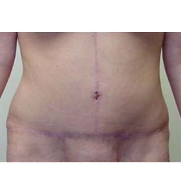 Fleur-De-Lis Abdominoplasty After