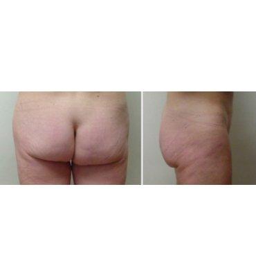 Infra Gluteal Buttock Lift After