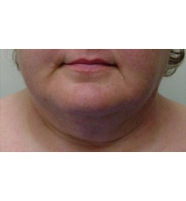 Liposuction For Jaw & Neckline After