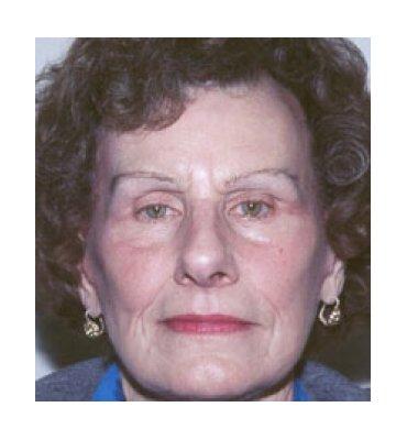 Facelift & Face Rejuvenation Treatments After