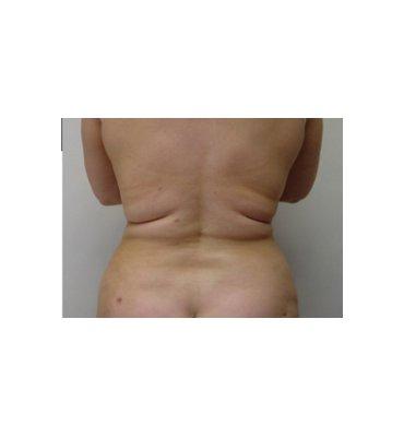 Superwet Liposuction After
