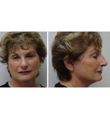 After Face Rejuvenation Treatment