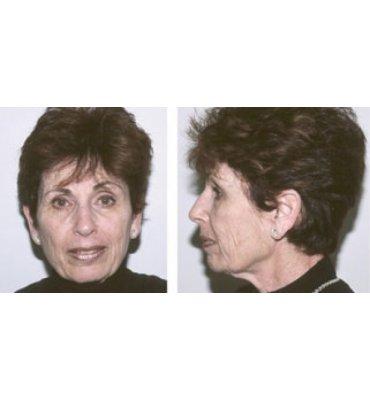 Effective Facial Rejuvenation Surgery Before