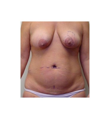 Tummy Tuck & Breast Lift Before