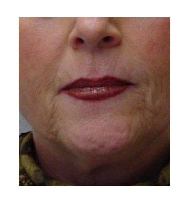 Face Rejuvenation For Women Before