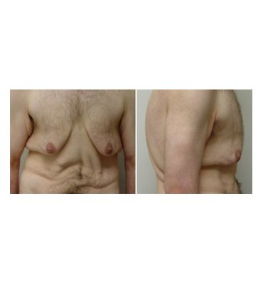 Cutis Pleonasmus & Male Breast Reduction Before