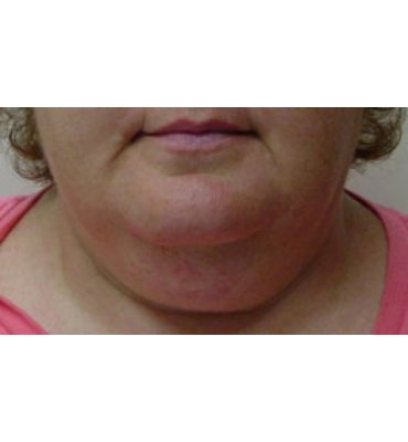 Liposuction For Jaw & Neckline Before