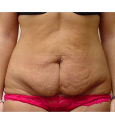 Abdominoplasty With Suture Contouring Before