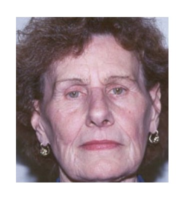 Facelift & Face Rejuvenation Treatments Before