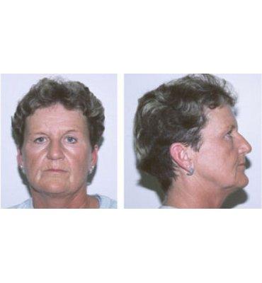 Simplified Face Rejuvenation Procedures Before