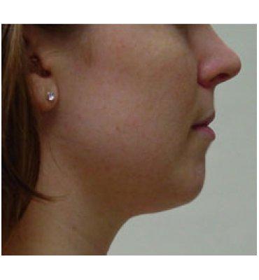 Facial Feature Enhancement Surgery Before