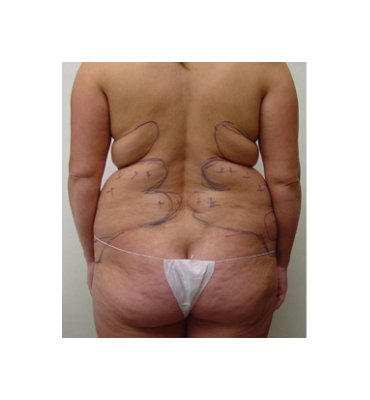 Liposuction Back Fat Before
