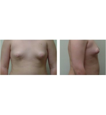 Liposuction With Gland Excision Before