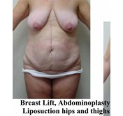 Body Contour Surgery Before