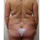 Before Liposuction